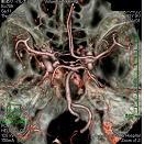 脳動脈瘤の3D画像